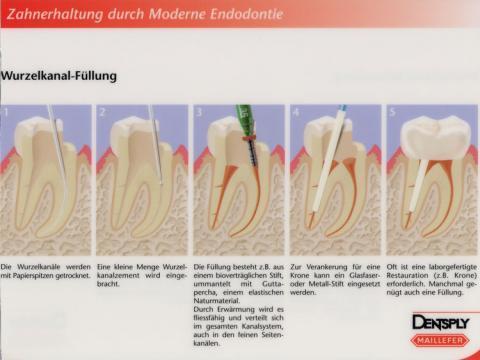 schmerzen nach wurzelbehandlung-was tun? (Zahnarzt