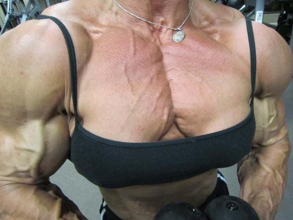 Die Hormonalmittel die Erhöhung der Brust