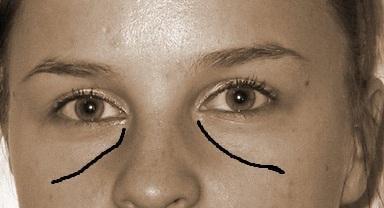 Die Masken für die runzelige und verwelkende Gesichtshaut