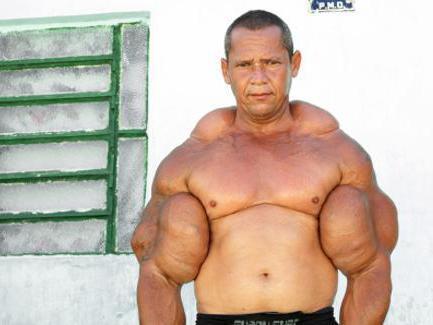 nebenwirkungen steroide bei frauen