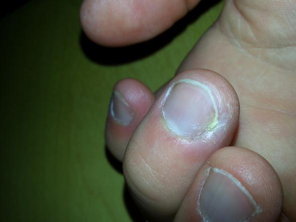 Entzu00fcndeter Finger (eiter Unterm Nagel) (Entzu00dcndung Schmerzen)