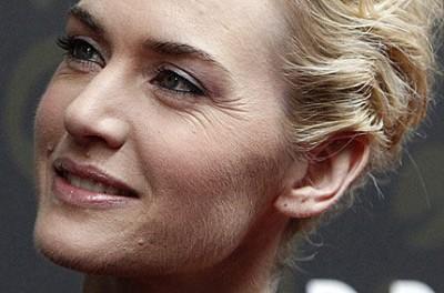 Damenbart entfernen: Gesichtsbehaarung bei Frauen