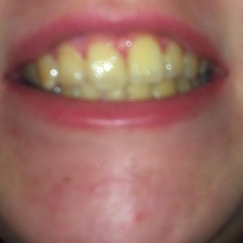 Was Tun Bei Gelben Zähnen