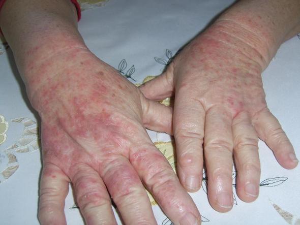 H 228 Sslichen Ausschlag An H 228 Nden Allergien Gesundheit
