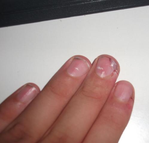 In Den Fingernagel Rein Geschnitten Was Tun?! (Verletzung Nu00e4gel Schnitt)