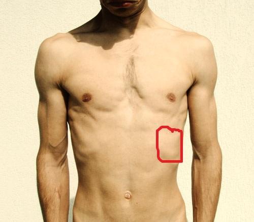 Die Rückenschmerz der Bruch der Wirbelsäule