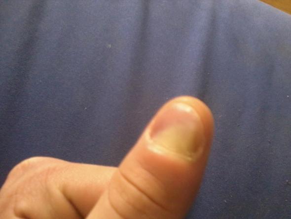 Die Keimbekämpfungen für die Behandlung gribka der Nägel