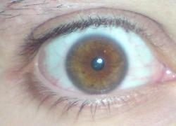 kleine pupille - ist das eine krankheit oder so
