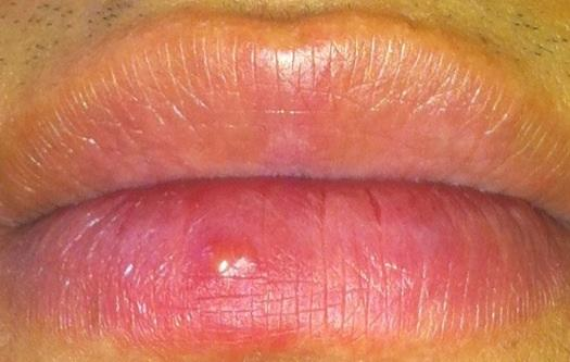 facts about herpes simplex 2 photo