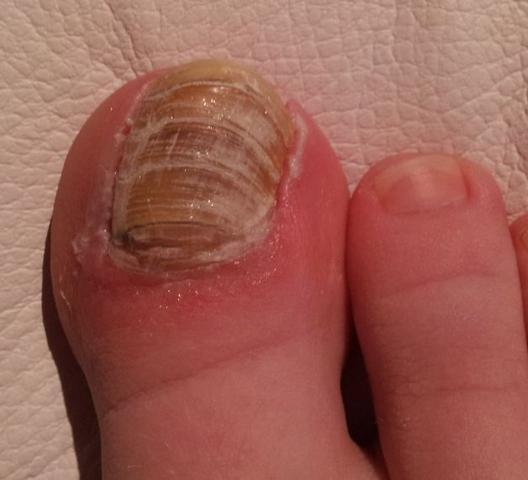 Die Hautwarzen beim Nagel der Hände die Behandlung