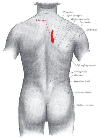 Wie Operation bei meschposwonkowoj dem Bruch machen