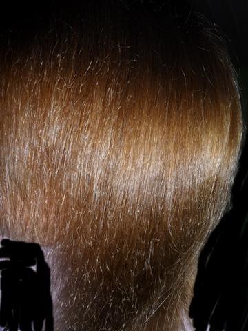 Die Methode der Behandlung des Haarausfalles