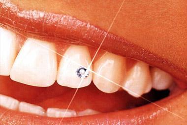 Was kostet so ein glitzerstein beim Zahnarzt ? (Schmuck