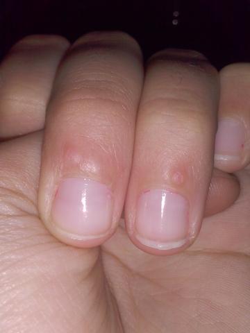 Was Sind Das Fu00fcr Hubbel Auf Meiner Nagelhaut? (Hand Nu00e4gel Pflege)