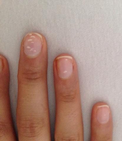 Die Speziese gribka der Nägel auf den Händen die Behandlung