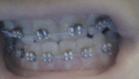 wie lange muss ich noch meine feste zahnspange tragen brackets zahnarzt zahn. Black Bedroom Furniture Sets. Home Design Ideas