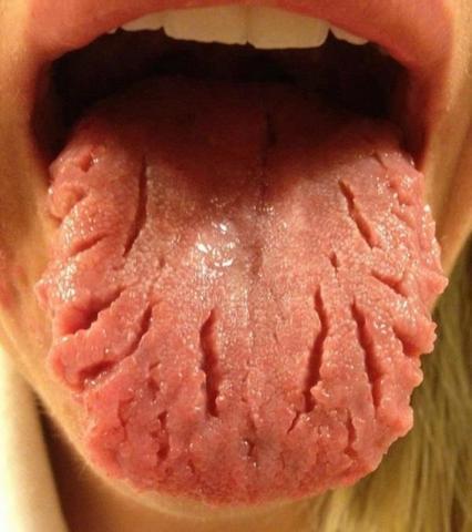Das Zahnpulver von den Pigmentflecken