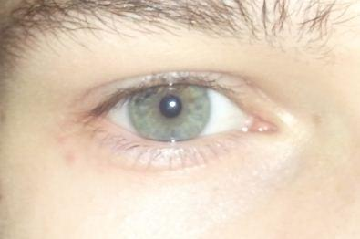 Psichossomatika die Wassergeschwulst des Auges