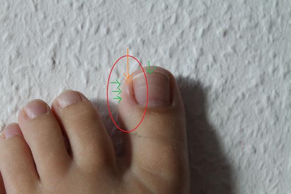 Als zu behandeln ist aus für des Nagels den Finger angeschwollen