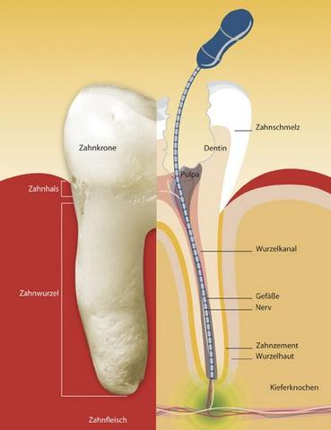 Bild 2 - (Gesundheit, Zähne, Zahnarzt)