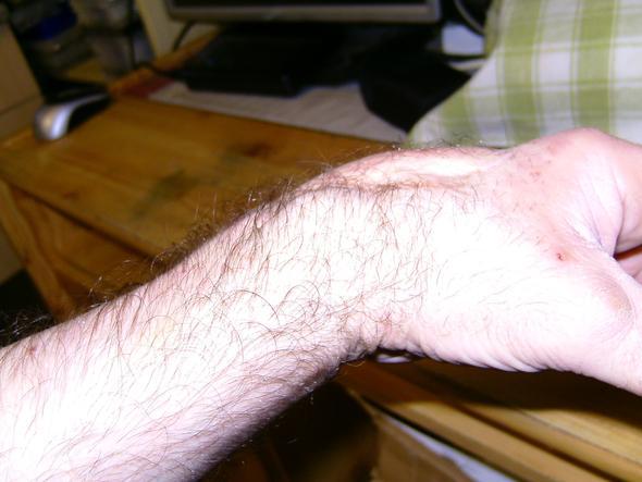 Hand von der Seite - (Verletzung, Hand, Schnittwunde)
