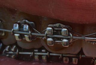 zuviel Kleber - (Zahnspange, Kieferorthopäde, Zahnbelag)
