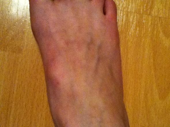 Von oben - (Füße, Lösung, Knochen)