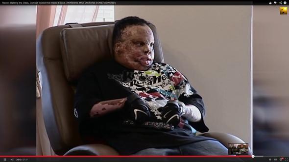 der hat noch ca. 1 Jahr  - mit zig OPs gelebt - (Tod, Kriegsfilm, schussverletzung)