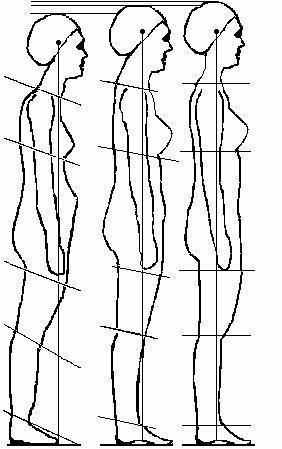 Haltungsschaden - (Gesundheit, Medizin, Ratgeber)