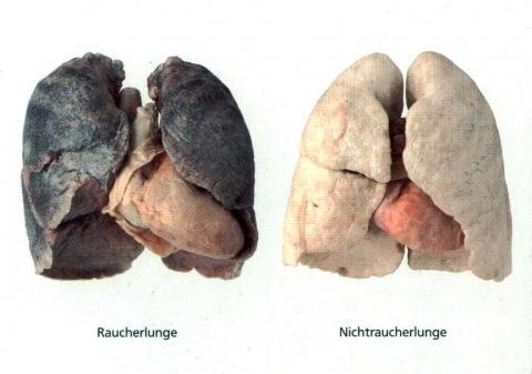 Raucherlunge_vs_Nichtraucherlunge - (Familie)