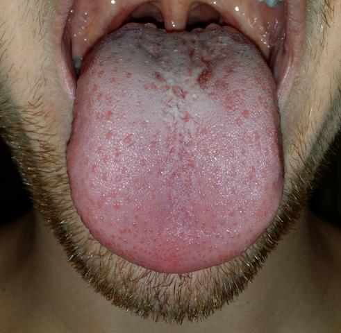 Zunge - (Medizin, Zunge)