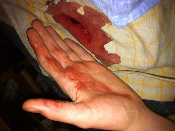 IMG_5689 - (Blut, Hals, Blutdruck)