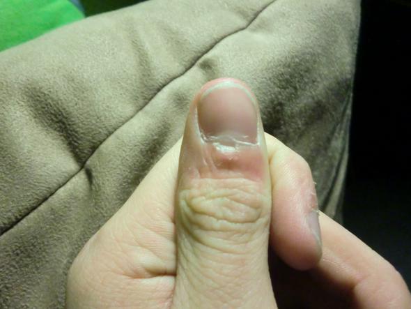 Der Zapfen auf dem Finger von der Beschädigung