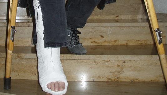 Gehen krücken treppen ohne belastung mit Gehen Mit