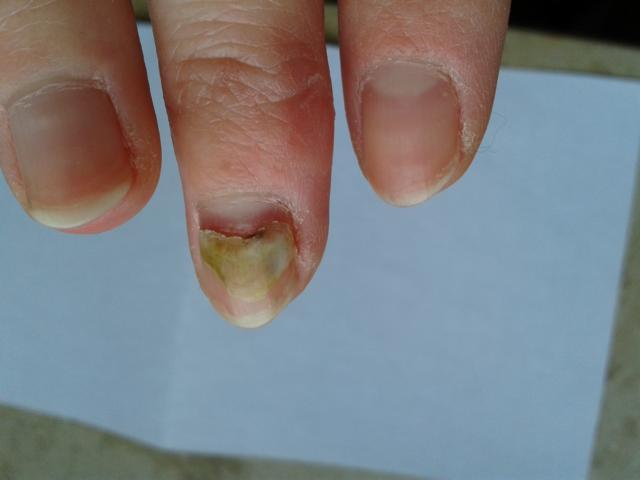 Hand Mund Fuß Fingernägel
