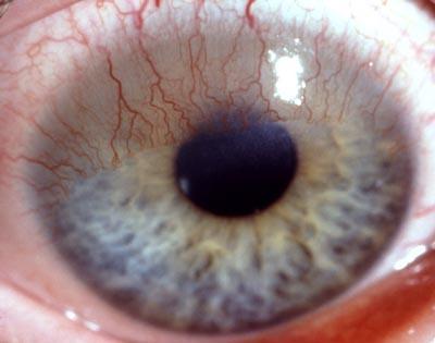 Einsprossungen - (Kontaktlinsen, Sehschwäche, drinlassen)