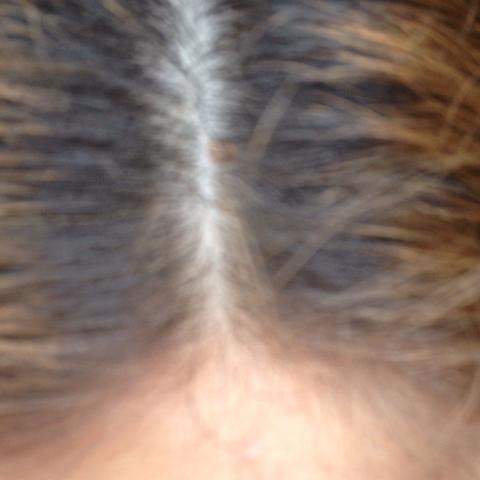 Das sind 2,9 cm  - (Haare, Haarwachstum, Inversion method)