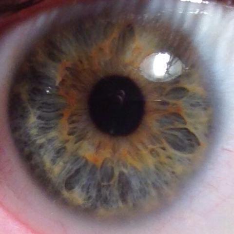 Mein Auge - (Augen, Augenfarbe, heterochromie)
