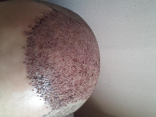 - (Haare, istanbul, haartransplantation)
