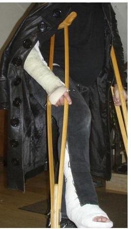 Arm und Oberschenkelgips mit Achselkrücken - (Beine, Arm, Beschäftigung)
