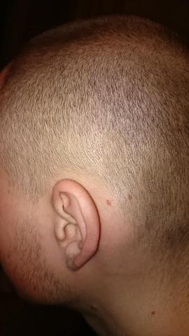 Von Was Bekommt Man Rote Kopfhaut Und Haarausfall Gesundheit