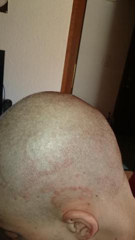 8.April 2015 - (Haare, Hautpflege, Kopfhaut)