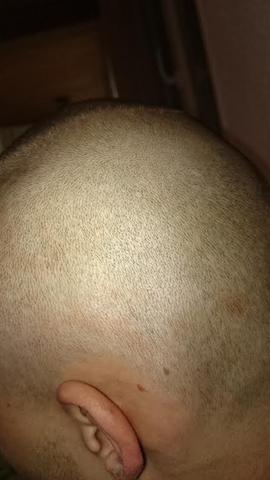28. April 2015 - (Haare, Hautpflege, Kopfhaut)