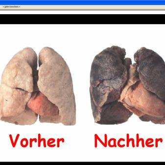 Ob Rauchen aufgegeben hat es wird die Tachykardie gehen