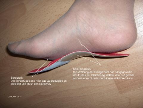 Die wirkungsweise der Einlage - (Gesundheit, Füße, Sehne)