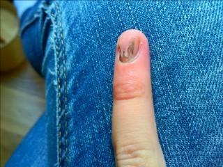 Das ist der Fingernagel meiner freundin - (Fingernägel, Nagelstudio)