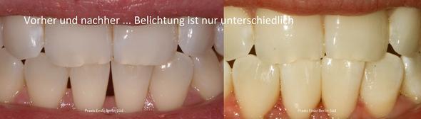 Vorher Nachher Komposit schwarzes Dreieck Zahnumformung Berlin - (Zähne, Zahnlücke, Schneidezahn)
