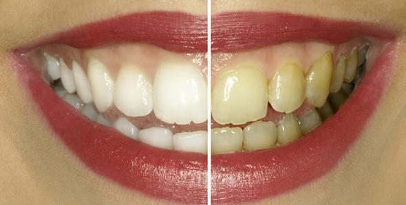 Die Zähne sowie manchmal auch die Augen verfärben sich. - (Jungs, rauchen, gruppenzwang)
