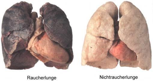 Die Schadstoffe und der Rauch an sich zerstören die Alveolen in der Lunge - (Jungs, rauchen, gruppenzwang)