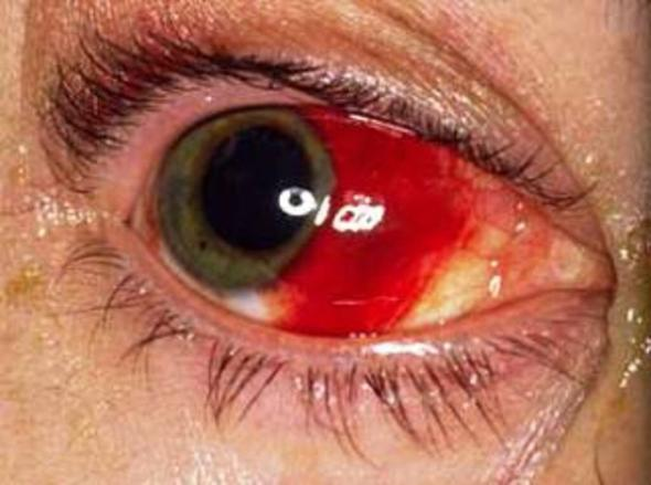 - (Körper, Augen, Blut)